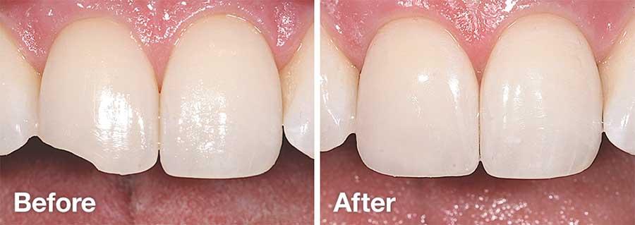 قبل و بعد کامپوزیت دندان