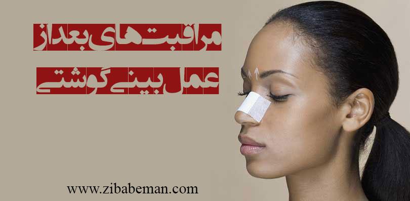 مراقبت بعد از عمل بینی های گوشتی