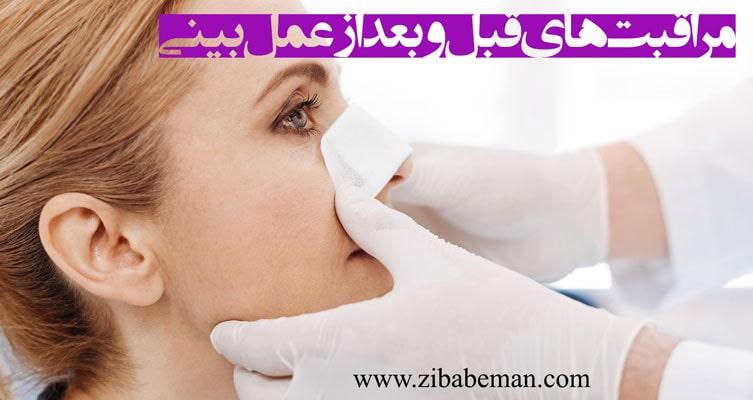 مراقبت های قبل و بعد از عمل بینی