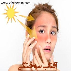 درمان آفتاب سوختگی و تیرگی پوست