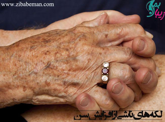 انواع لک های پوستی لکه های ناشی از افزایش سن