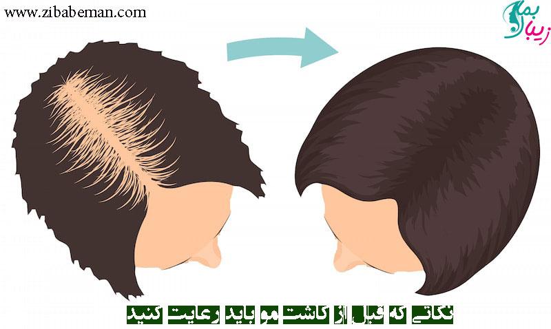 نکاتی که قبل از کاشت مو باید رعایت کنید