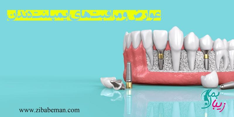 عوارض و مراقبت های ایمپلنت دندان