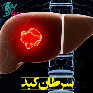 سرطان کبد ، درباره علائم و روش های درمان این بیماری چه می دانید ؟