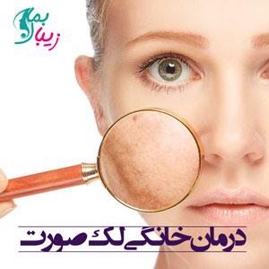 درمان خانگی لک صورت با روش های معجزه آسا