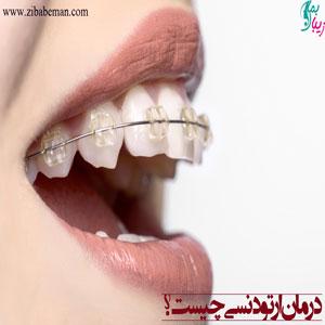 هر آنچه درباره ارتودنسی دندان باید بدانید
