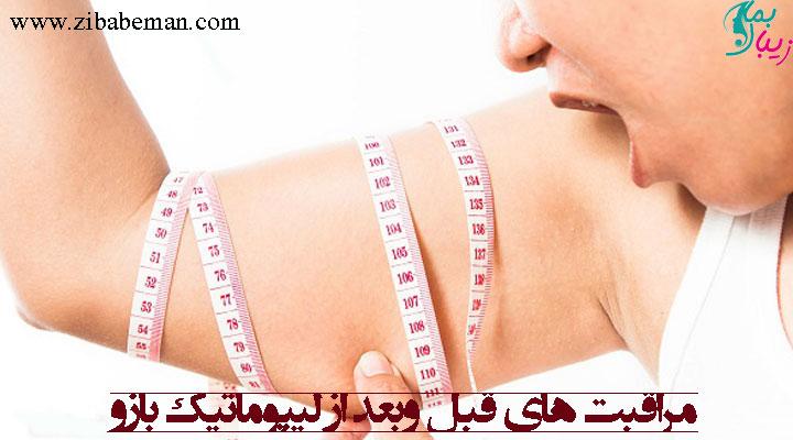 مراقبت های قبل بعد از لیپوماتیک بازو