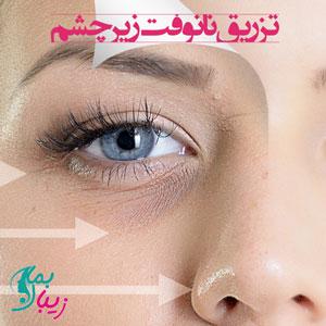 نانوفت زیر چشم