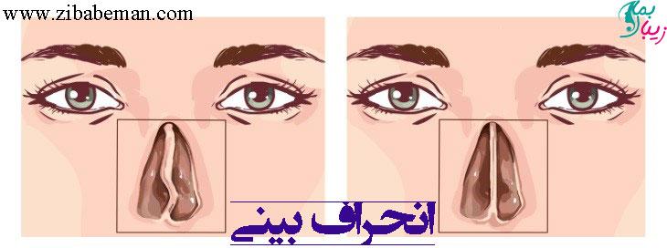 انحراف بینی