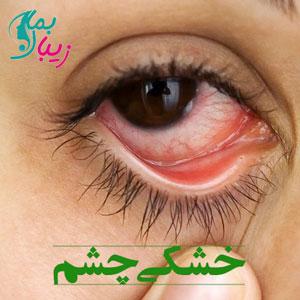 خشکی چشم | علائم و علت ها و روش درمان این بیماری