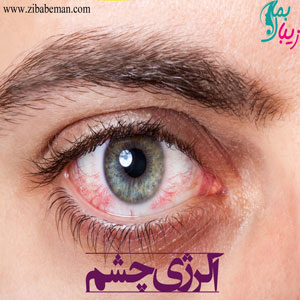 آلرژی چشم