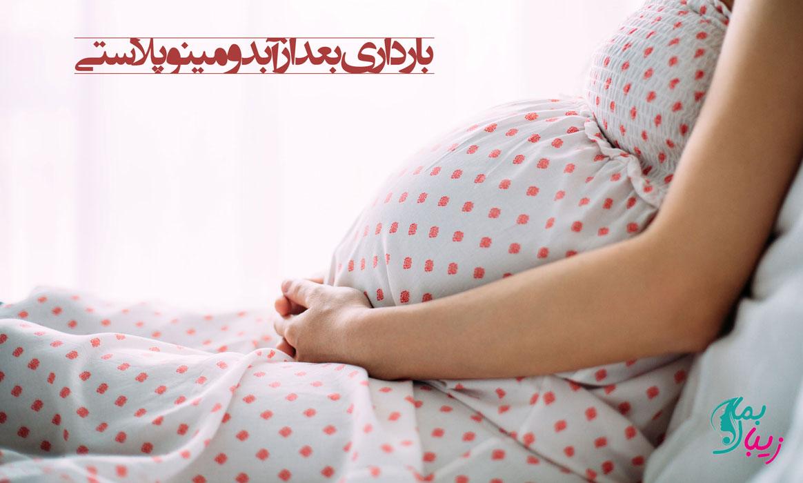 بارداری بعد از آبدومینوپلاستی
