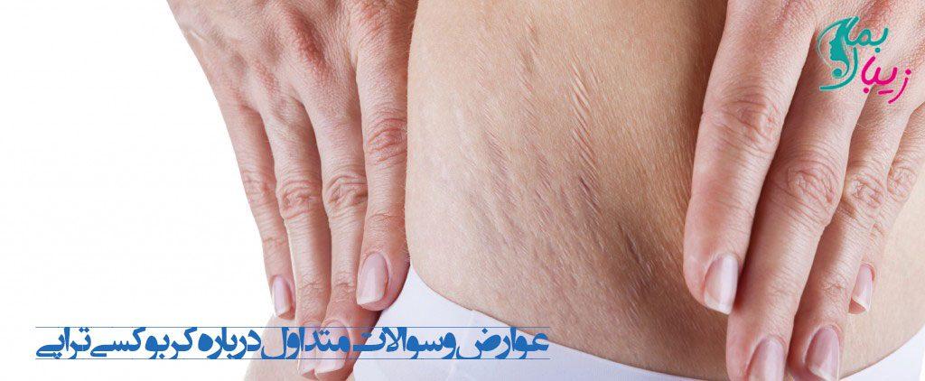 عوارض کربوکسی تراپی