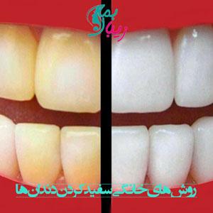 روش های سفید کردن دندان ها در منزل