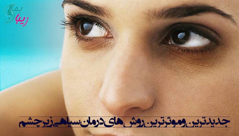 جدید ترین و موثر ترین روش های درمان سیاهی زیر چشم