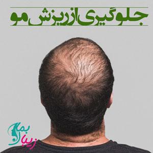 جدید ترین روش های جلوگیری از ریزش مو را بدانید