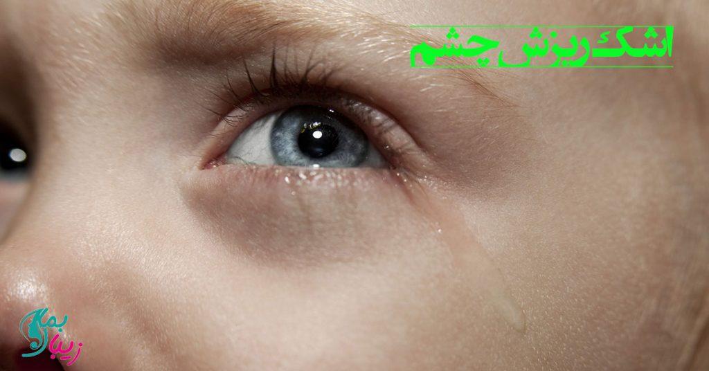 اشک ریزش چشم