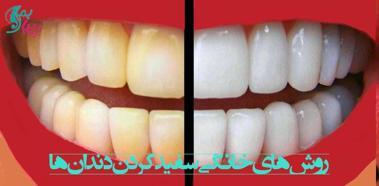 روش های سفید کردن دندان ها