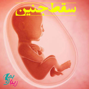 سقط جنین | مراحل سقط جنین و هر آنچه که باید بدانید