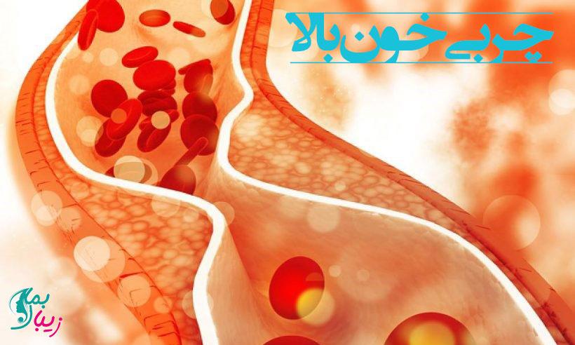 عوارض چربی خون بالا