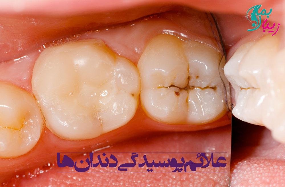 علائم پوسیدگی دندان ها