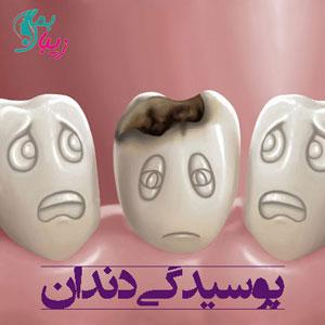 پوسیدگی دندان | بررسی عوامل ایجاد پوسیدگی و راه های درمان و پیشگیری