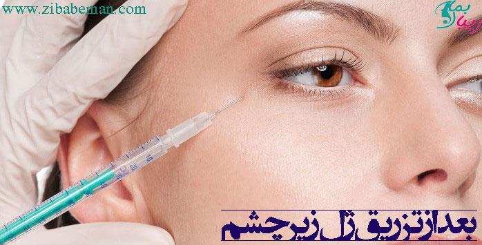 بعد از تزریق ژل زیر چشم
