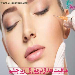 مراقبت بعد از تزریق ژل زیر چشم