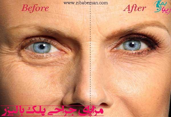 مزایای جراحی پلک با لیزر