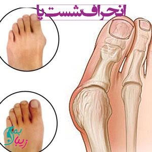 انحراف شست پا (هالوکس والگوس) |علل و انواع روش های درمان