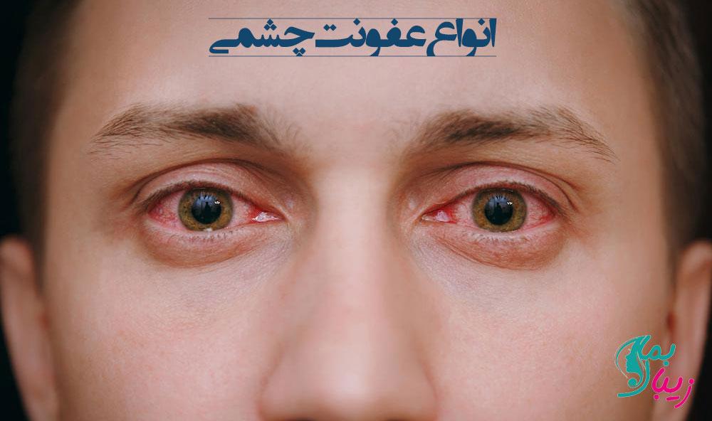 انواع عفونت چشمی