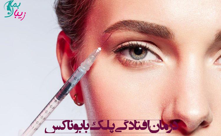 درمان افتادگی پلک با بوتاکس