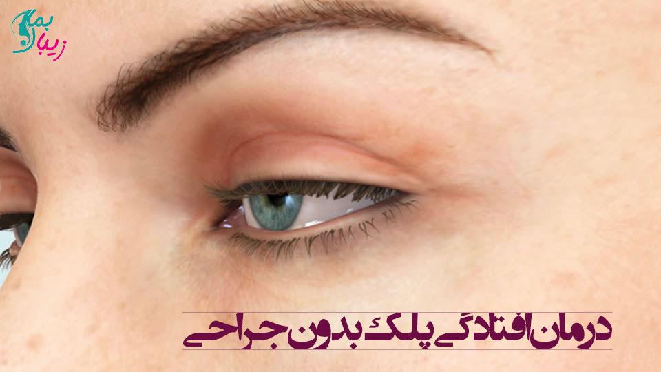 درمان افتادگی پلک بدون جراحی