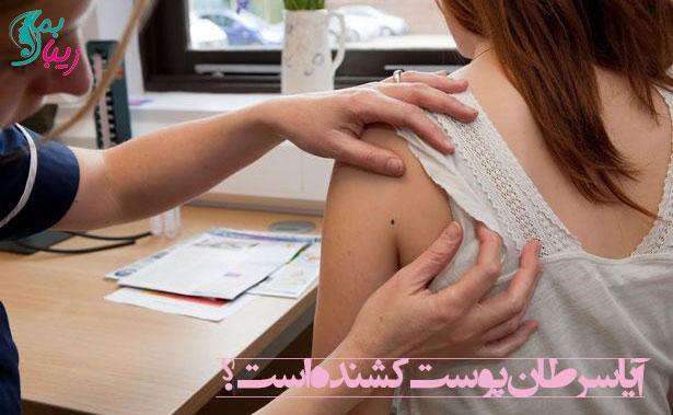 آیا سرطان پوست کشنده است ؟