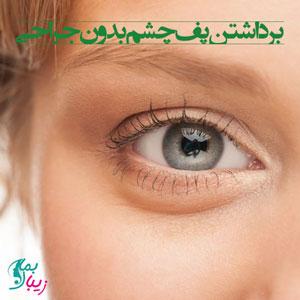 برداشتن پف چشم بدون جراحی