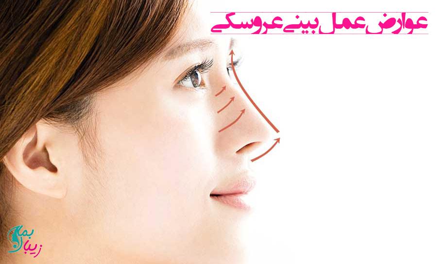 عوارض بینی عروسکی
