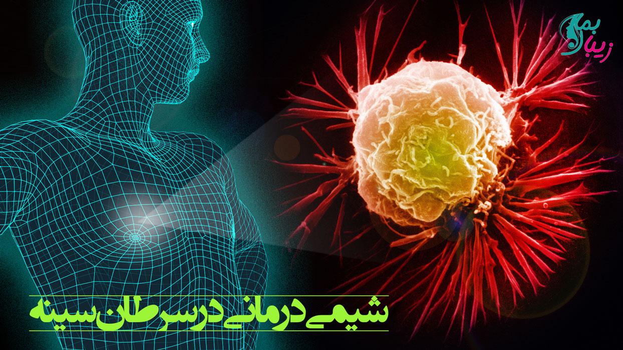 شيمی درمانی در سرطان سينه