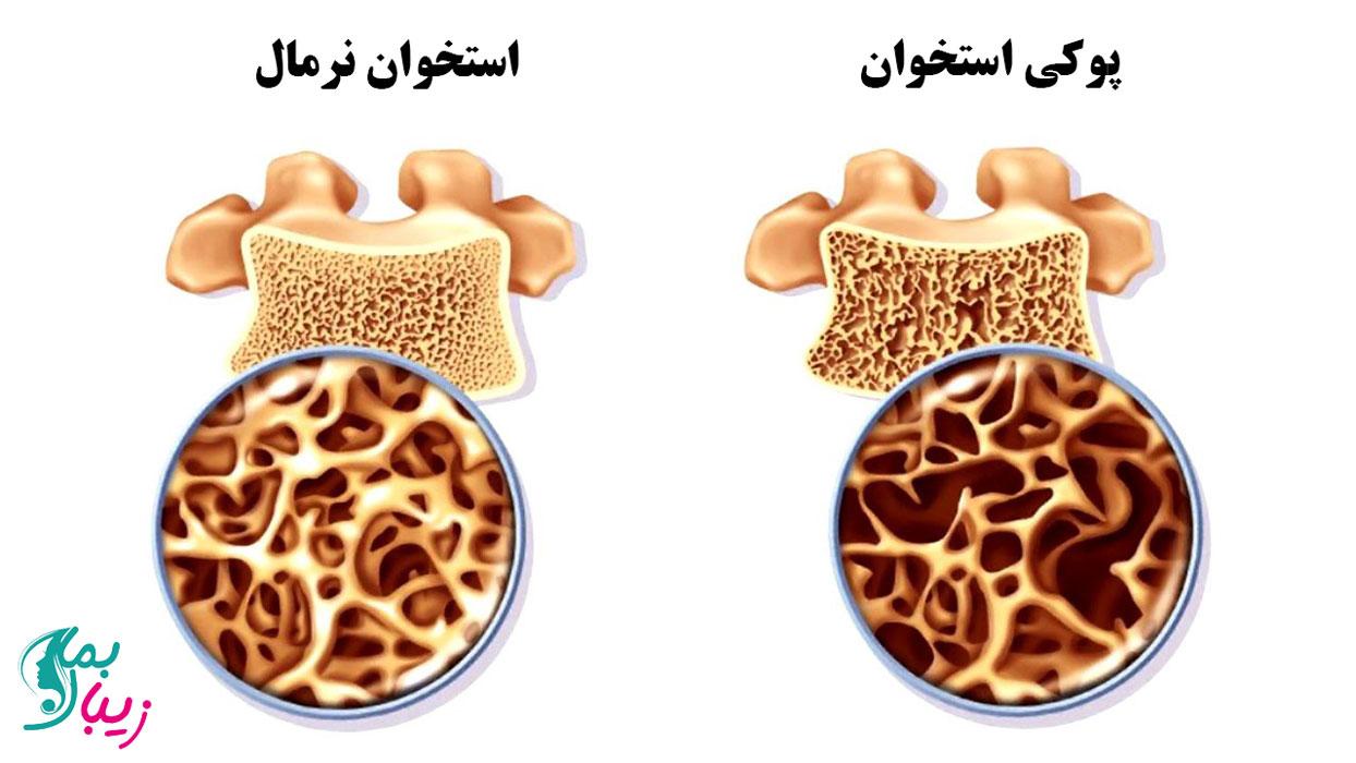 تفاوت پوکی استخوان و استخوان نرمال