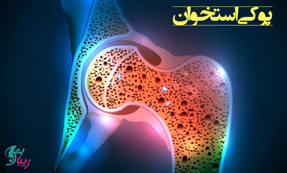 پوکی استخوان | علائم ، روش های پیشگیری و درمان