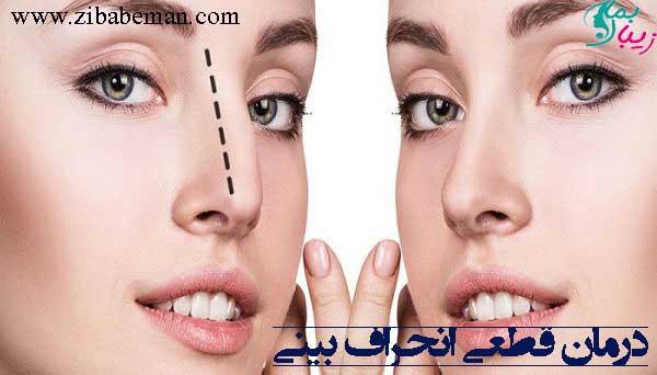درمان قطعی انحراف بینی