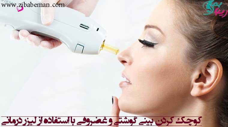 کوچک کردن بینی با استفاده از لیزر