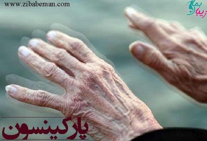 بیماری پارکینسون ، علائم و عوارض و راه های پیشگیری از آن