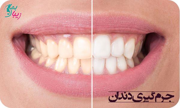 جرم گیری دندان ، مراحل و روش های خانگی آن