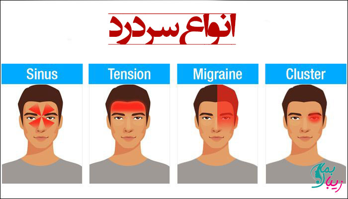 انواع سر درد