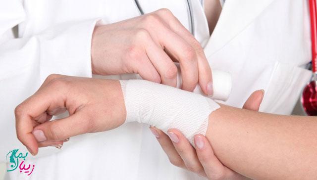 درمان سوختگی دست به چه صورت انجام میشود؟