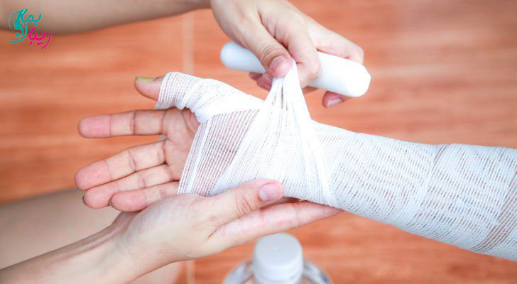 سوختگی دست
