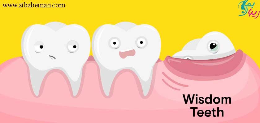 دندان عقل و هر آنچه درباره آن باید بدانید!