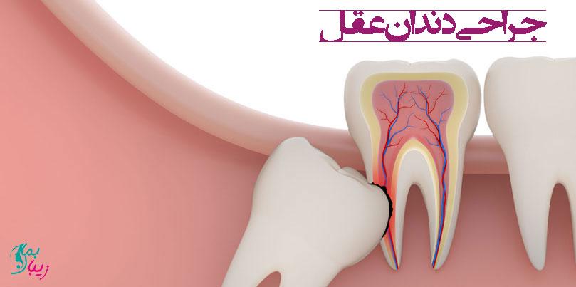 همه چیز در مورد جراحی دندان عقل