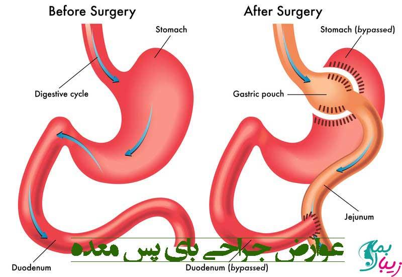 عوارض جراحی بای پس معده و بررسی خطرات آن