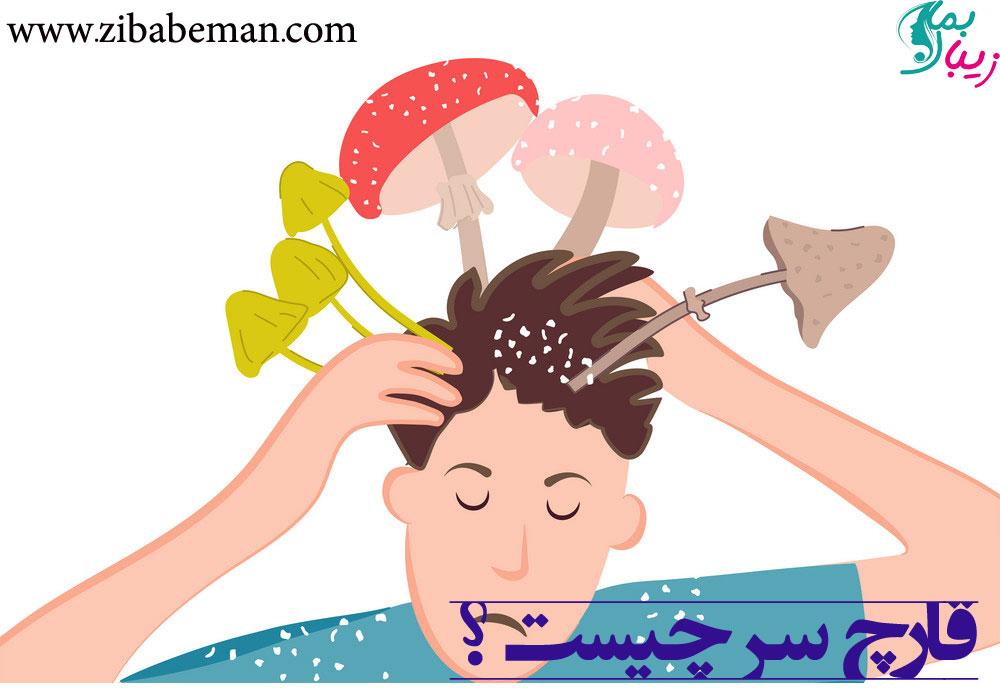 قارچ سر چیست ، علائم ، پیشگیری ، تشخیص و درمان